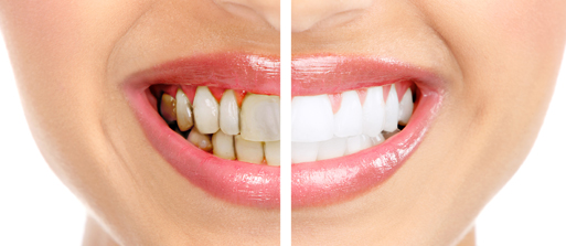 What are the Benefits of Laser Treatment For Gum Disease