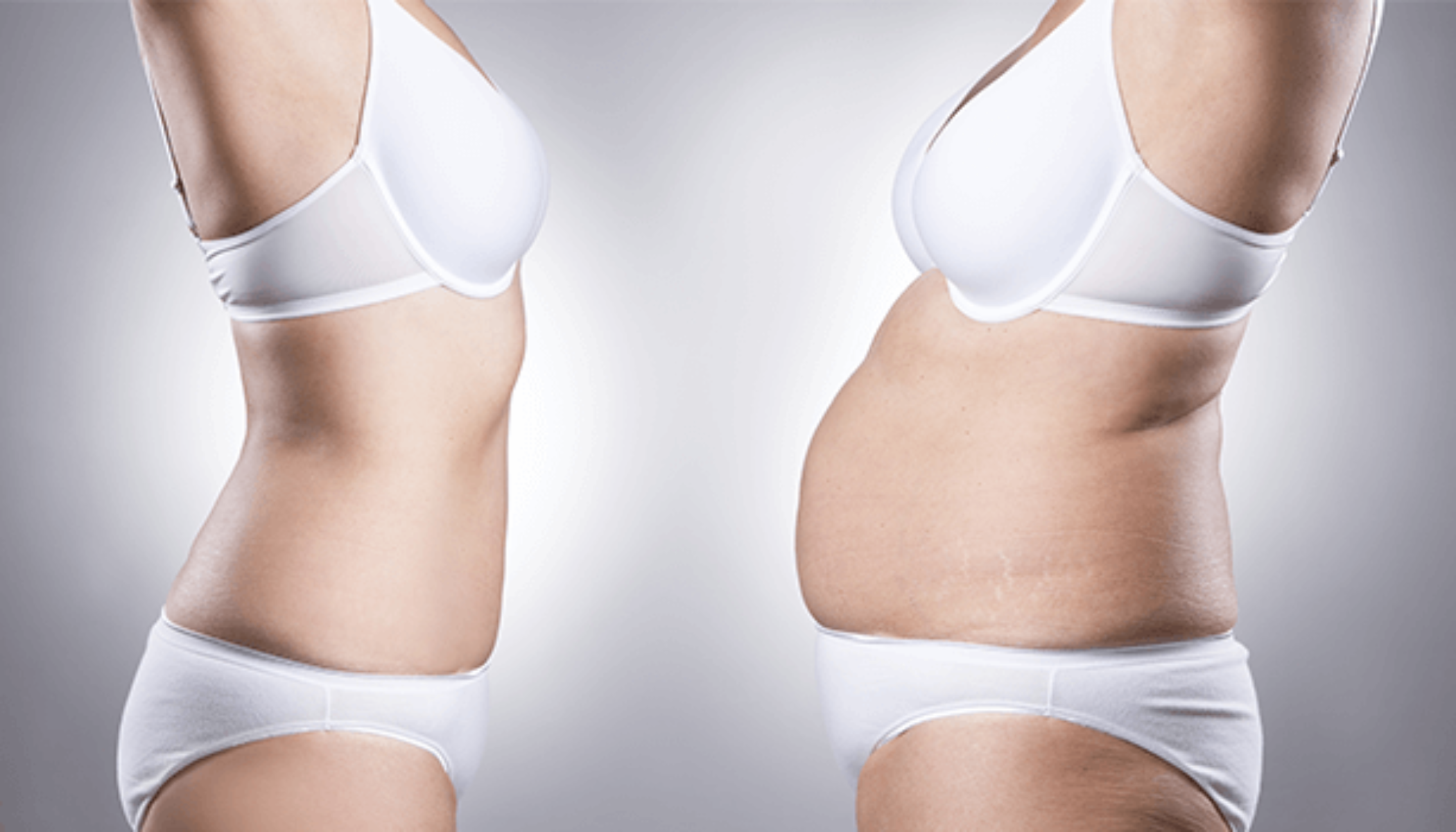 Liposuction Knowledge and when you should undergo?