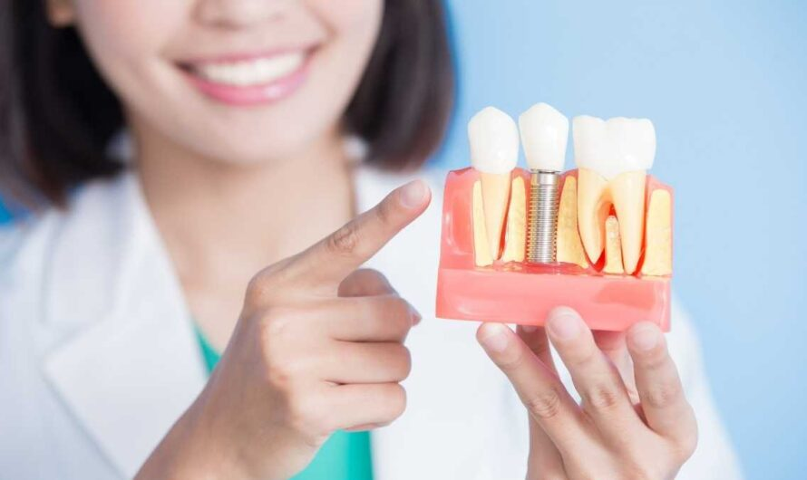 How Much Does Dental Implants Cost?